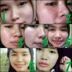 Detox Nu Amoorea Beauty Plus Bar Berapa Lama