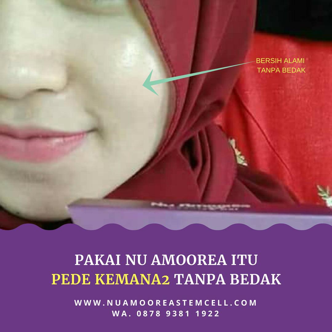 sabun muka penghilang jerawat dan bekas jerawat amoorea