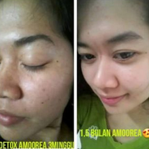 Testimoni nu amoorea stemcell untuk kulit berjerawat