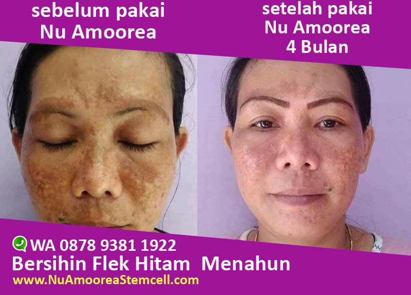 sabun menghilangkan flek hitam di wajah nu amoorea