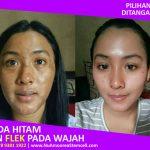 Flek Hitam di wajah makin tebal setelah Sabun Amoorea digunakan