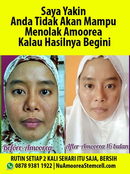 Sabun muka yang bagus untuk wajah berminyak dan berjerawat